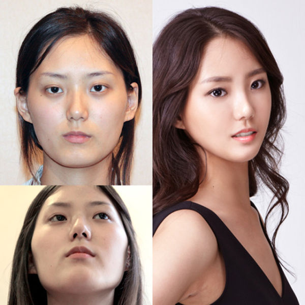 Before And After Photos Of Korean Plastic Surgery Part 2