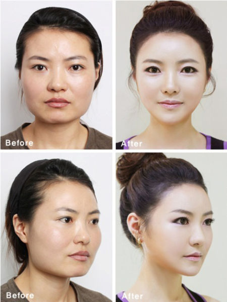 Before and After Photos of Korean Plastic Surgery. Part 2
