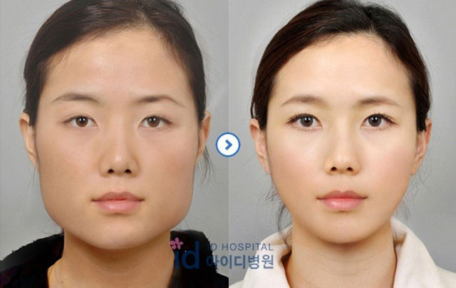 before and after photos of korean plastic surgery  part 2  62 pics