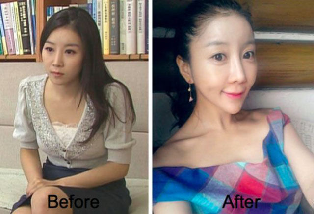 A South Korean TV Presenter Pre and Post Plastic Surgery
