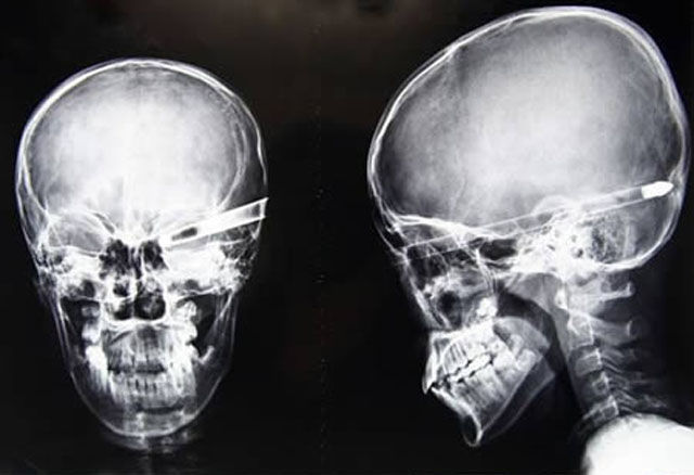 Real X-Rays That Will Shock and Astound You