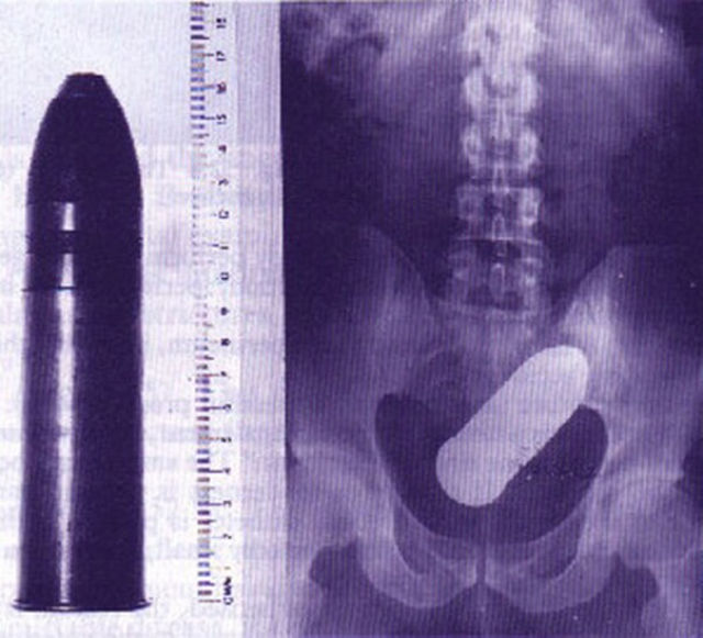 X-Rays That Prove That Horny Guys Are Idiots