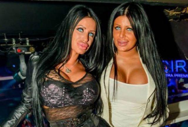 Queens of Disastrous Plastic Surgeries