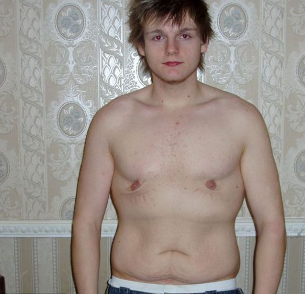 Total Body Transformation of One of Britain