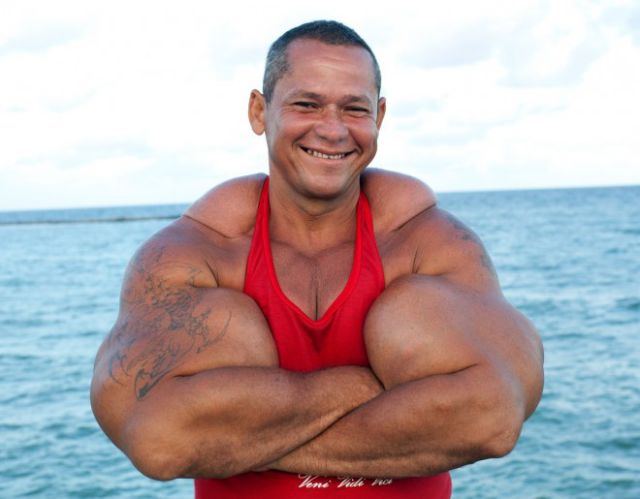 The Man Whose Monster Arms Might Actually Kill Him