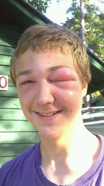 The Mad Effects of Bee Stings on Faces (19 pics ...