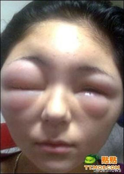 The Mad Effects of Bee Stings on Faces