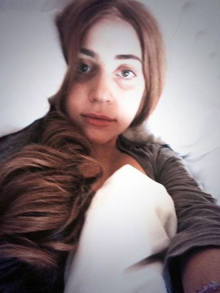 A Close-up of a Makeup-Free Lady Gaga