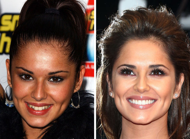 Proof That Teeth Can Completely Change the Way You Look