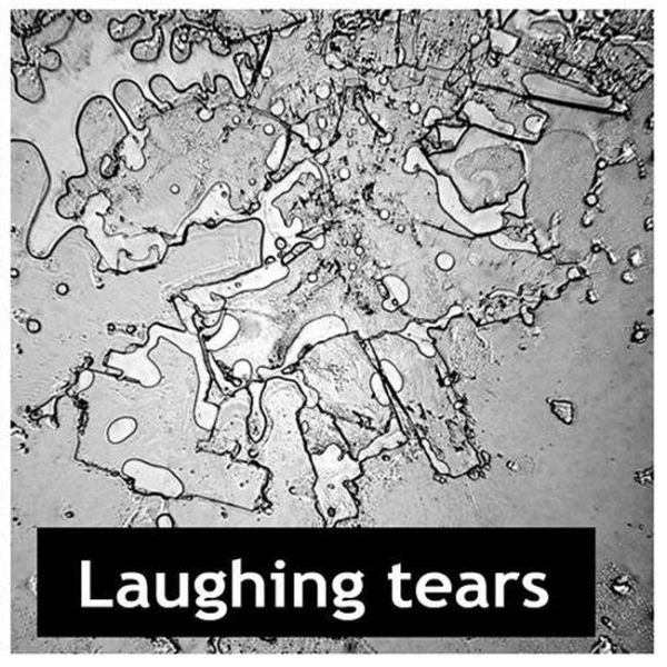 Fascinating Images of Dried Human Tears