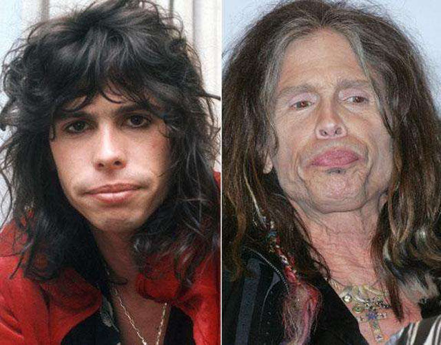 Stars Who Are Not Aging Very Well At All