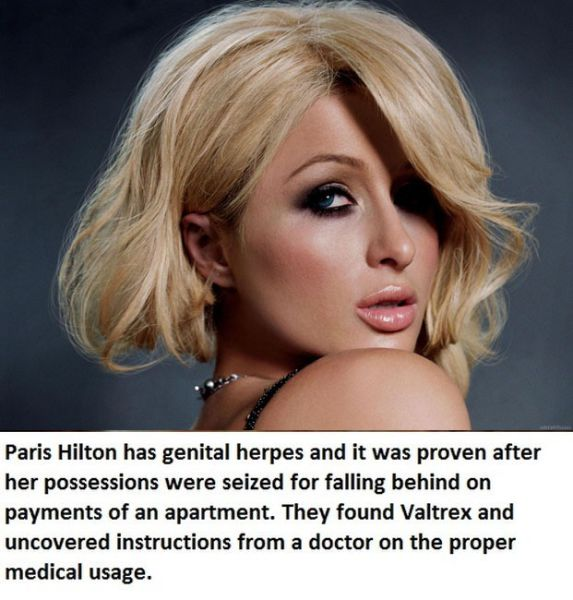 Celebs Who Really Have STDs