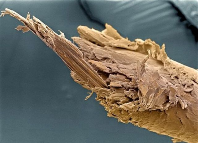 A Fascinating Look at Things Under an Electron Microscope