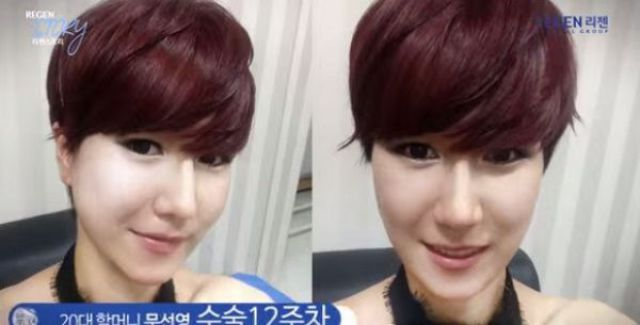 Korean Woman Gets a Whole New Face Shape