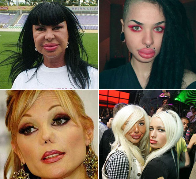 Plastic Surgery Fails That Are Just Wrong