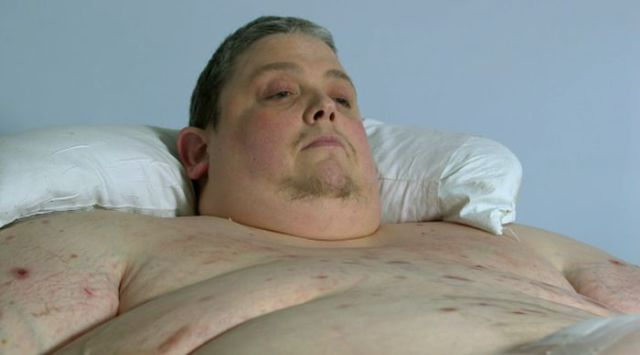 A Revealing X-Ray Image of What an Obese Man Really Looks Like