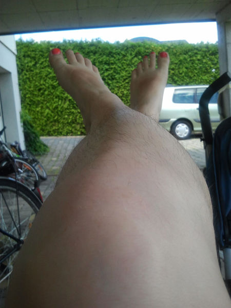 Woman Unite in Honor of Their Hairy Legs