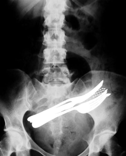Real X-Rays That Are Will Shock You