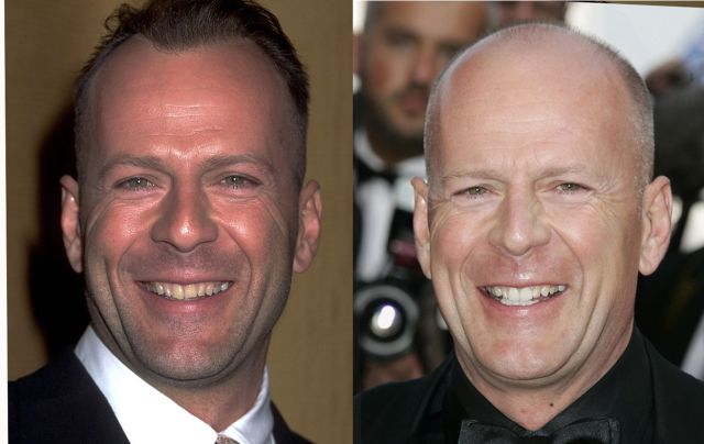 Bald Celebs Who Look Very Different with No Hair