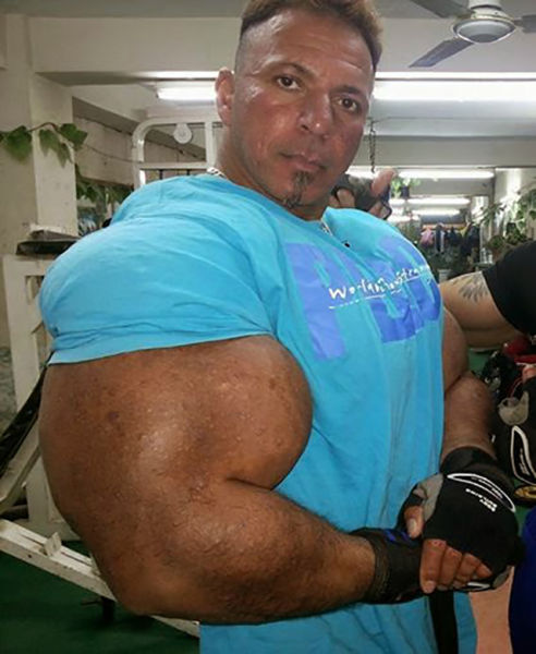 This Guy Has the Most Gigantic Arm Muscles Ever