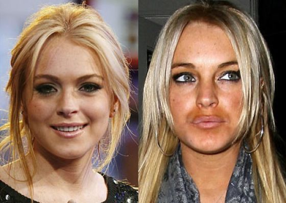 Revealing Photos of Stars Pre and Post Plastic Surgery