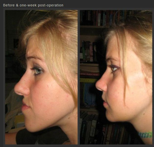 An Incredible Jaw Surgery That Gave This Girl a New Lease on Life