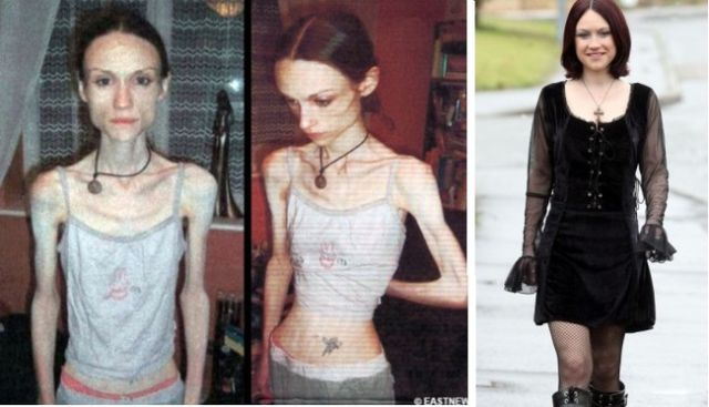 Positive Before and After Pics of Eating Disorder Sufferers