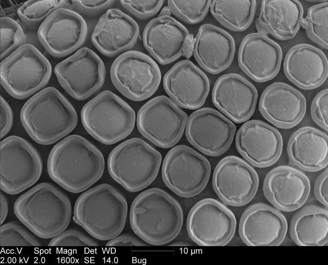Creepy Electron Microscope Pics of a Gnat