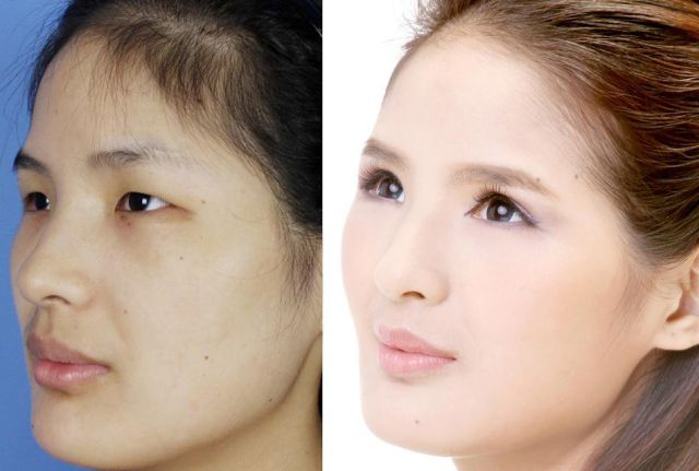 Plastic Surgery Is All the Rage in China