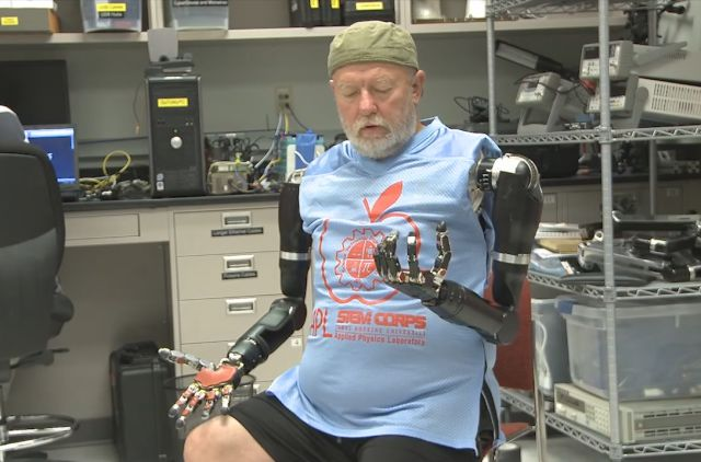 Double Amputee Controls Two Prosthetic Arms Using His Mind