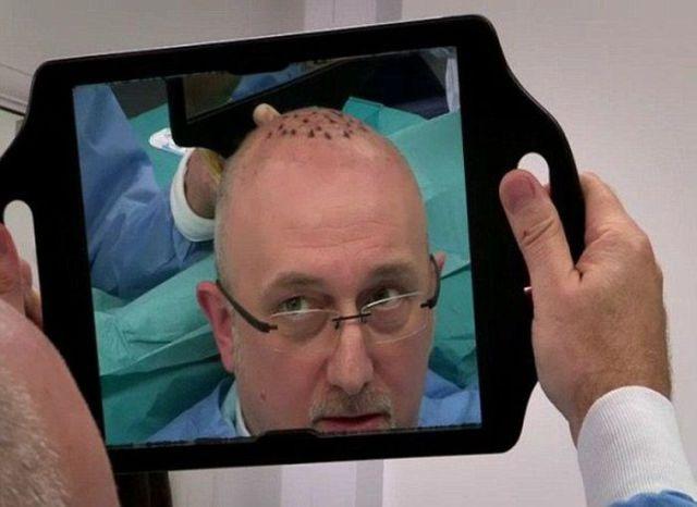 A Hair Transplant Surgery Fail