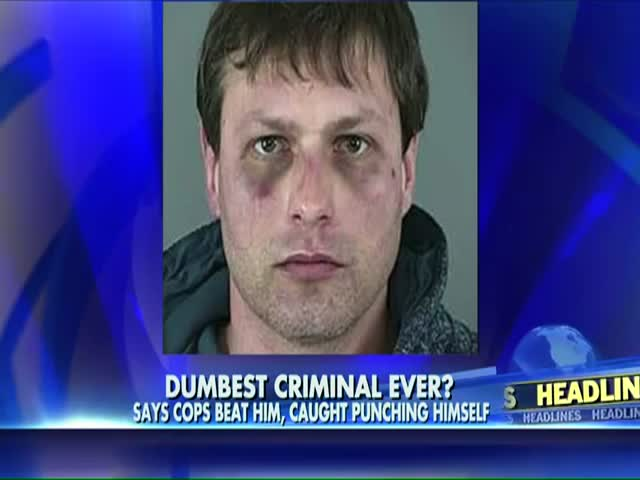 World's Dumbest Criminal Punches Himself 45 Times to Claim Police Brutality  (VIDEO)