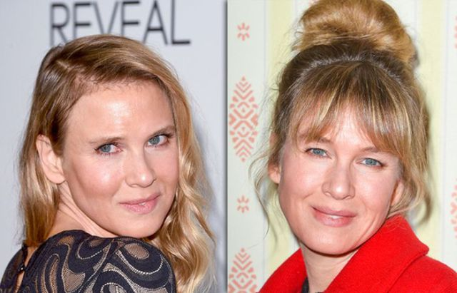 Renee Zellweger's Face Seems to Be Back to Normal