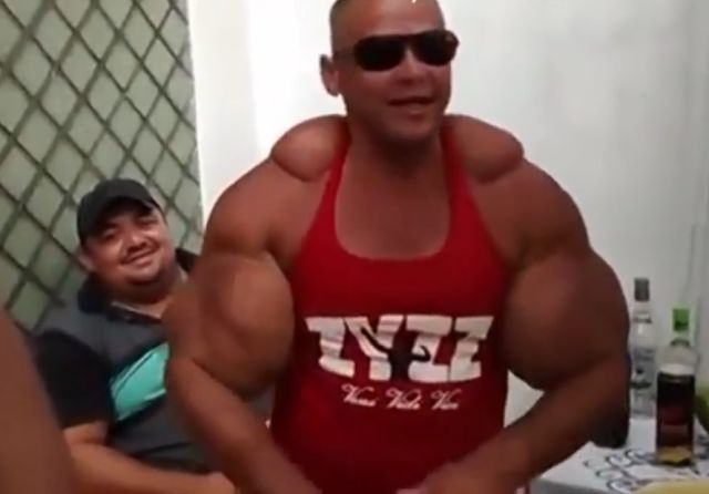 The Famous Brazilian Synthol Freak Is Back