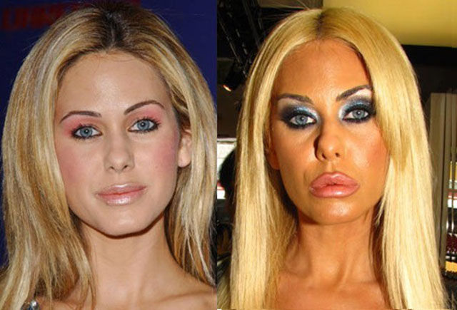 Celebrity Surgeries That Didn't End Well
