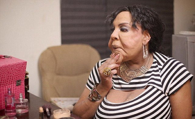 Disfigured Transgender Woman Shows off Her New Face