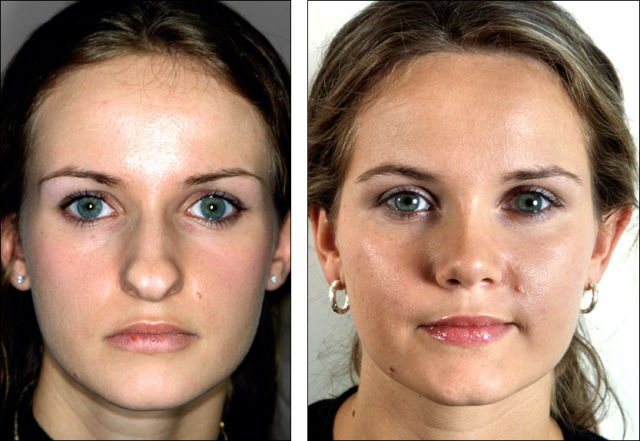 It Is Amazing What a Great Nose Job Can Do