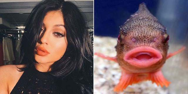"Kylie Jenner's Lip Challenge Is Giving Girls ""Fish Lips ..."