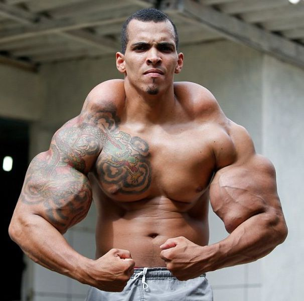 The Man Who Is a Real Life Hulk