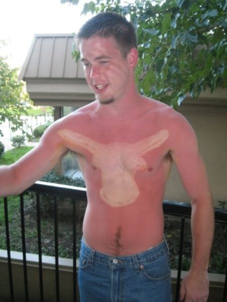 Suntan Fails That Make a Case for Using Suncream