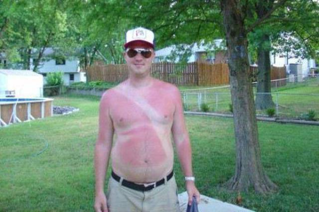 Sunscreen Is an Essential Summer Item