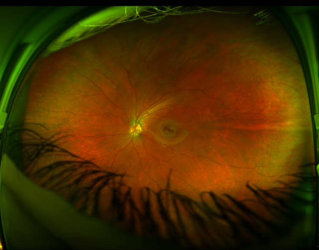 Lasers Show a Rarely Seen View of the Human Eye
