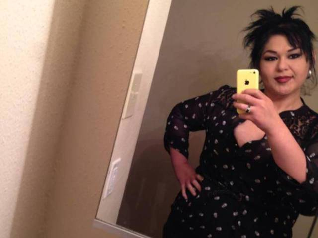 Woman Loses 80 Percent of Her Body Weight and Dramatically Changes Her Life
