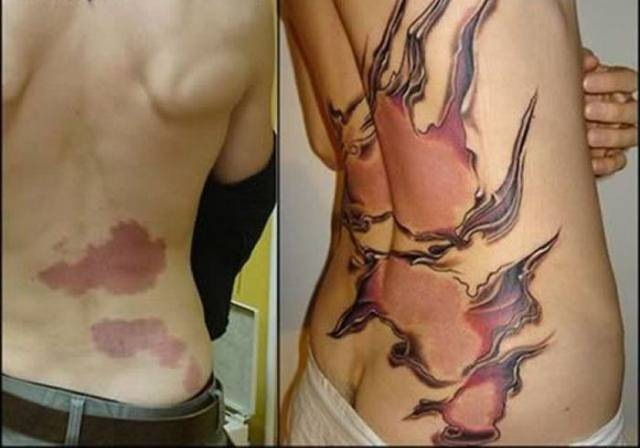 Clever Tattoos Provide Some Beautiful Camouflage for Bad Scars