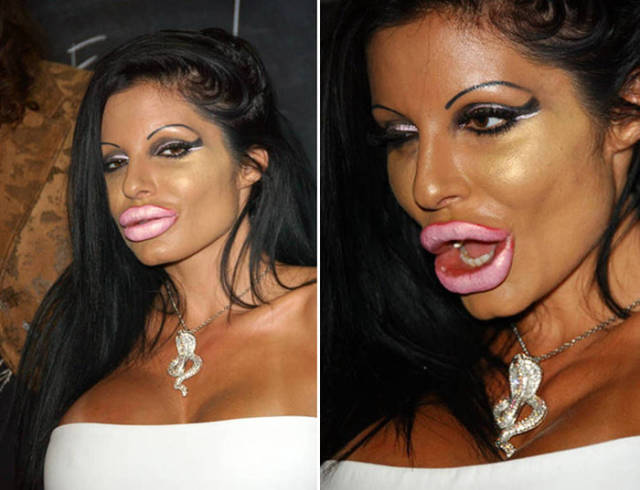 Plastic Surgery Fails That Will Make You Love Your Natural Looks