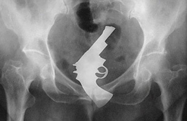 X-Rays of Objects Stuck in Really Strange Places