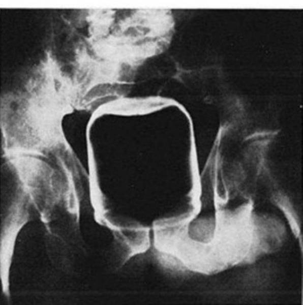 X Rays Of Objects Stuck In Really Strange Places 30 Pics