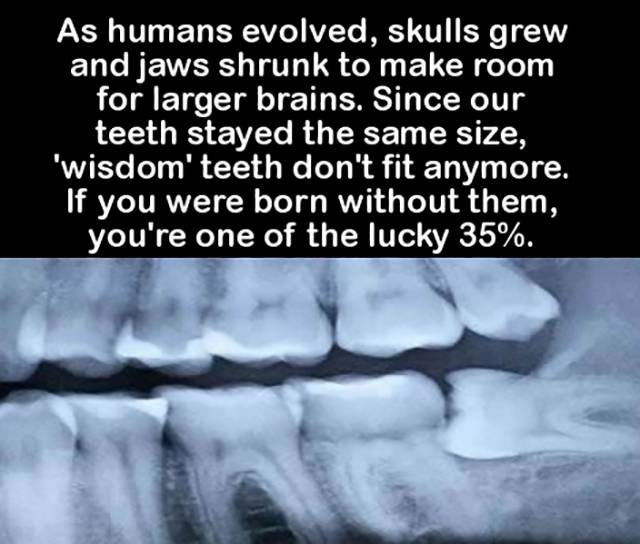 A Few Cool and Interesting Facts to Excite Your Brain