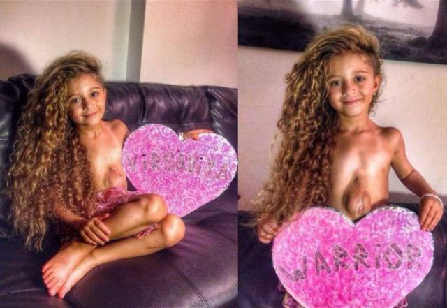 This Little Girl Proves That Life Is What You Make of It