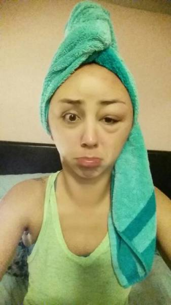 Unlucky Girl Suffers a Severe Reaction to Hair Dye That Will Shock You